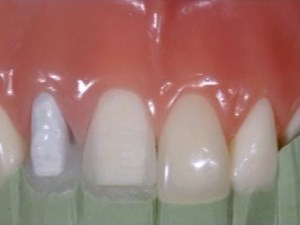 Anterior Composite Restorations - The Reality of Making it Real