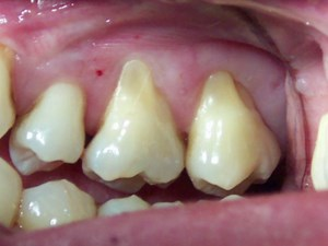 Acellular Dermal Grafts in the Correction of Gingival Recession: Discovering the Possibilities
