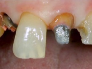 Ceramic Treatment Options for Discolored Teeth - Part 2