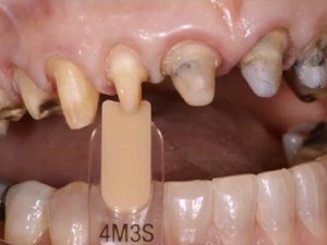 Managing Discolored Preps in the Age of All-Ceramic Restorations: Materials & Techniques