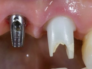 Shape Color and Contour of Peri-Implant Tissue - The Role of the Abutment-Connection Complex