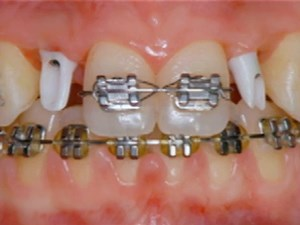 Evolving Trends in Digital Conventional and Implant Dentistry