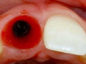 The Relevance of Tissue Form, Color and Thickness on Anterior Implant Esthetics - Part 1 of 2