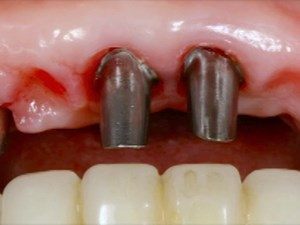 The Relevance of Tissue Form, Color and Thickness on Anterior Implant Esthetics - Part 2 of 2