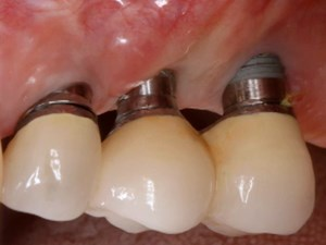 Peri-Implant Mucositis, Peri-Implantitis - Where Are We At?