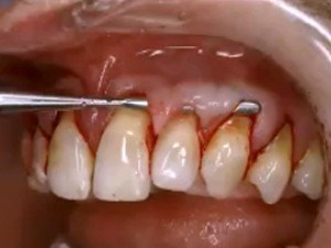 Current Trends in Soft Tissue Preservation and Augmentation of Teeth, Pontics & Implants