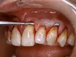 The Evolving Role of Soft Tissue Grafting in Esthetic Reconstructive Dentistry