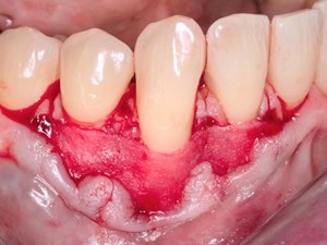 The Importance of Connective Tissue in the Management of Long Term Stability of Compromised Natural Teeth