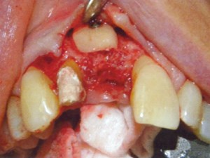 Anterior Extraction & Implant Placement in a Severely Deficient Site