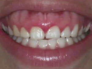 Diagnosing & Treatment Planning Gingival Esthetics