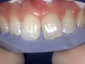 The New Simplified Clinical Protocols For Porcelain & Composite Veneers