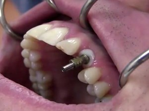 Immediate Implant Placement and Loading of a Canine with a Thin Labial Plate - Impression Technique - Part 2 of 2
