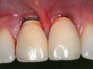 Controversies Surrounding Delayed vs. Immediate Implant Placement: Is There No Middle Ground?