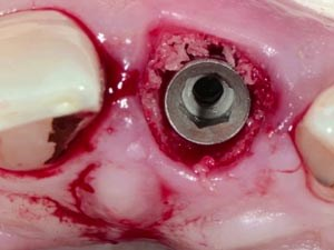 Minimally Invasive Anterior Implant Therapy with Immediate Provisionalization