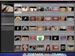 Adobe Photoshop Lightroom And Its Application In Dentistry