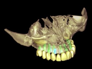 3D Imaging and its Applications in Oral Implantology