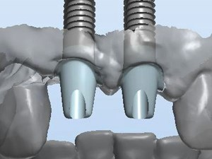 CAD CAM Dentistry for Teeth and Implants