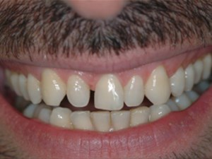 Aesthetic Pre-evaluative Temporaries for Anterior Porcelain Veneers