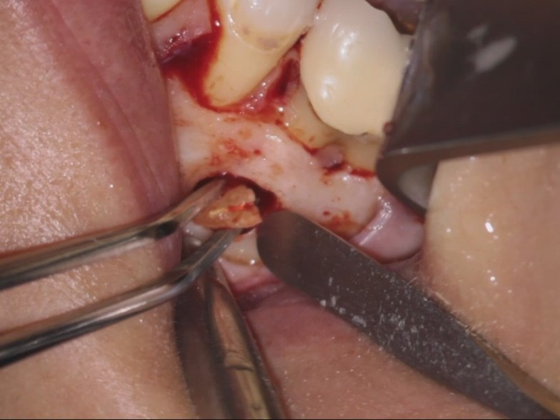 Apical Dentinal Cracks as a Cause of Endodontic Treatment Failure: Microsurgical Diagnosis and Management part 1 of 2