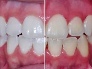 The State of The Art in Whitening - Part 2 of 2