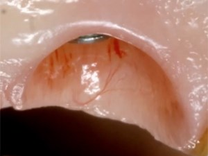 Occlusion in Implant Dentistry - Part 2 of  2