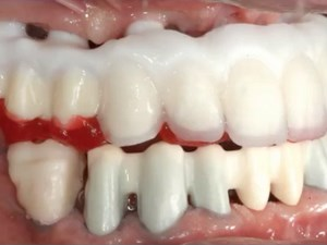 Cad Cam Technologies to Restore a Case on Natural Dentition & Implant