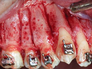 Periodontally Accelerated Osteogenic Orthodontics - Part 1