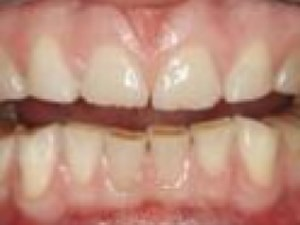 Classification and Treatment of the Anterior Maxillary Dentition Affected by Dental Erosion: The Ace Classification