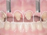 Optimizing Tissue Esthetics of Single Tooth Implants