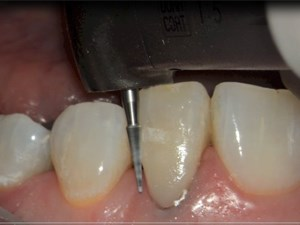 Smile Transformations Through Composite Restorations