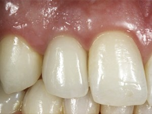 Dental color matching instruments and systems. Review of clinical and research aspects