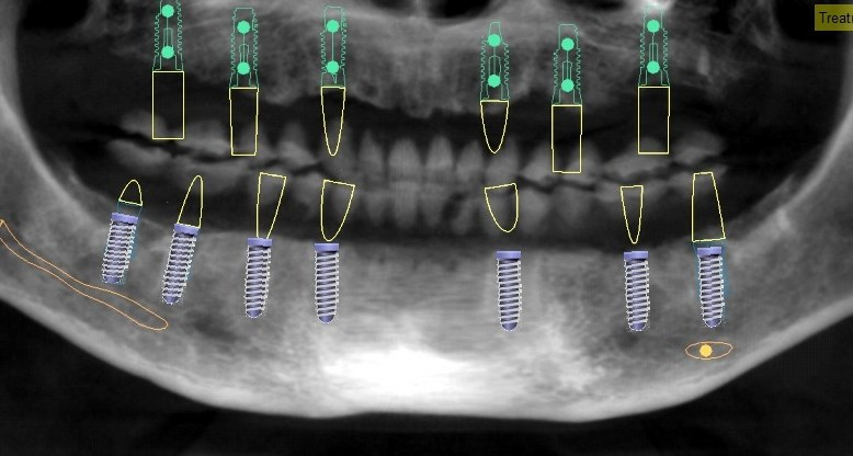 Bridging Clinical Skills and Practice Success in Periodontics and Implant Therapy