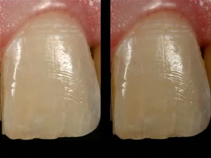 Single Ceramic Laminate Veneer Tooth #8