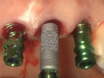 Multiple Anterior Tooth Replacement with Trabecular Metal Implants and 3D Immediate Loading Protocols