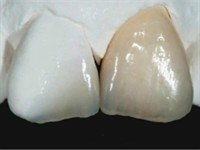 Hot Topics in Adhesion and Etchable Dental Ceramics