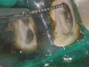 Prevention and Management of Broken Endodontic Instruments