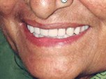 Restoring Facial Aesthetics and Function with Implant Overdentures