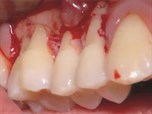 The Basics of Root Coverage Surgery with Acellular Dermal Grafts: A STEP-BY-STEP Live Patient Demonstration