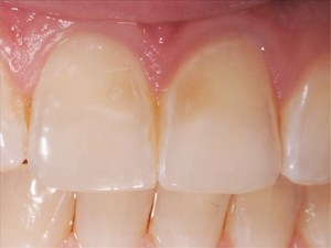 Repairing Erosive Defects on Anterior Teeth