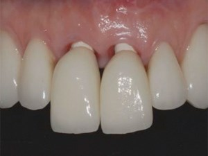 Implant Esthetics: Recognizing Pitfalls and How to Avoid Problems