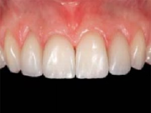 Clinical Performance of Porcelain Laminate Veneers: Outcomes of the Aesthetic Pre-evaluative Temporary (APT) Technique