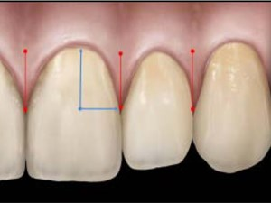 Maxillary Anterior Papilla Display During Smiling: A Clinical Study of the Interdental Smile Line