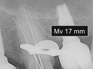 Three-Canal Maxillary Premolar Teeth: A Clinical Reality