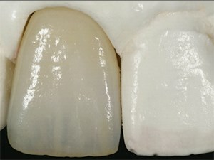 The Single Anterior Crown and Minimalistic Veneers