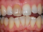 Single Dark Teeth Bleaching, Externally and Internally