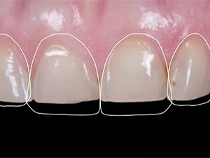 Improving the Dentist/Technician Communication for optimum Smile Design and Ceramic Restorations