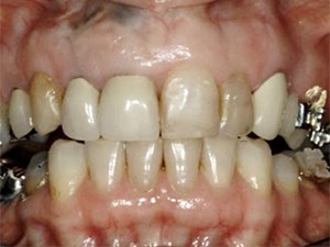The Merger of Orthodontics with Cosmetic Dentistry