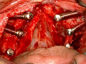 Zygomatic Implants in the Treatment of Fully Edentulous Patients