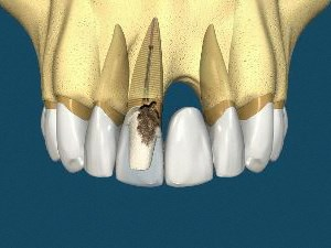 Bridges versus Implants- For Patients & Clinicians