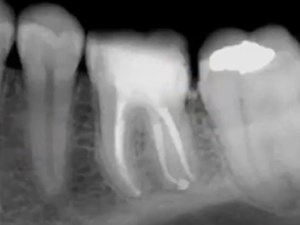 Re-treatment Endodontics of a Missed Distal Canal.